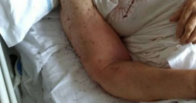 Napoli. Formiche in ospedale San Paolo: infermieri sotto procedimento disciplinare